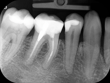 Dentec anbefaler Carestreams CS 7200 fosforpladeskanner. Kontakt os i dag!