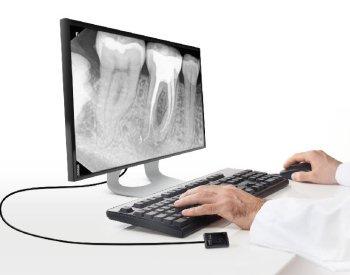 Dentec anbefaler Carestreams RVG 5200. Kontakt os i dag, og hør mere om mulighederne ved en intraoral sensor