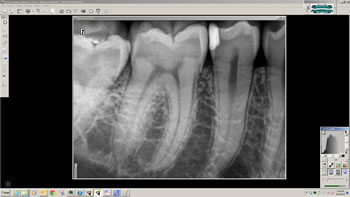 Dentec anbefaler Carestreams RVG 6200. Kontakt os i dag!
