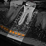 DenTec forhandler Carestreams prisvindende 8100 serie både med 3D- og ceph-løsning. Kontakt os i dag!